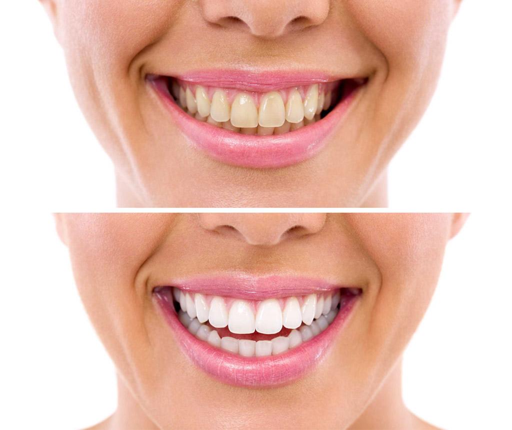 blanqueamiento dental en Martorell