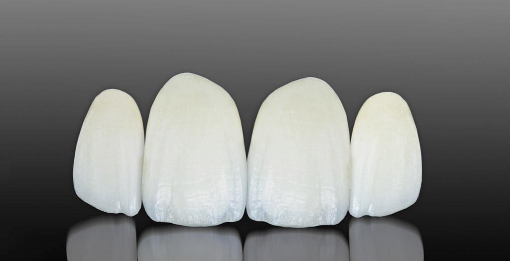 Carillas dentales sin rebajar el diente en Martorell