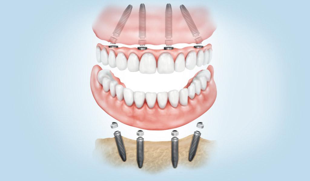 dentadura fijada con implantes dentales en Martorell