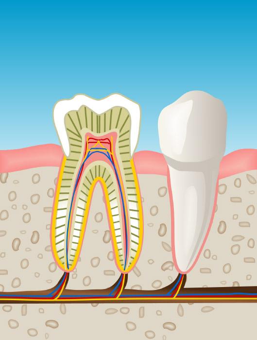 Endodoncia en Martorell