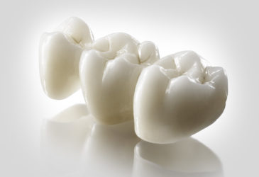 estética dental en Martorell