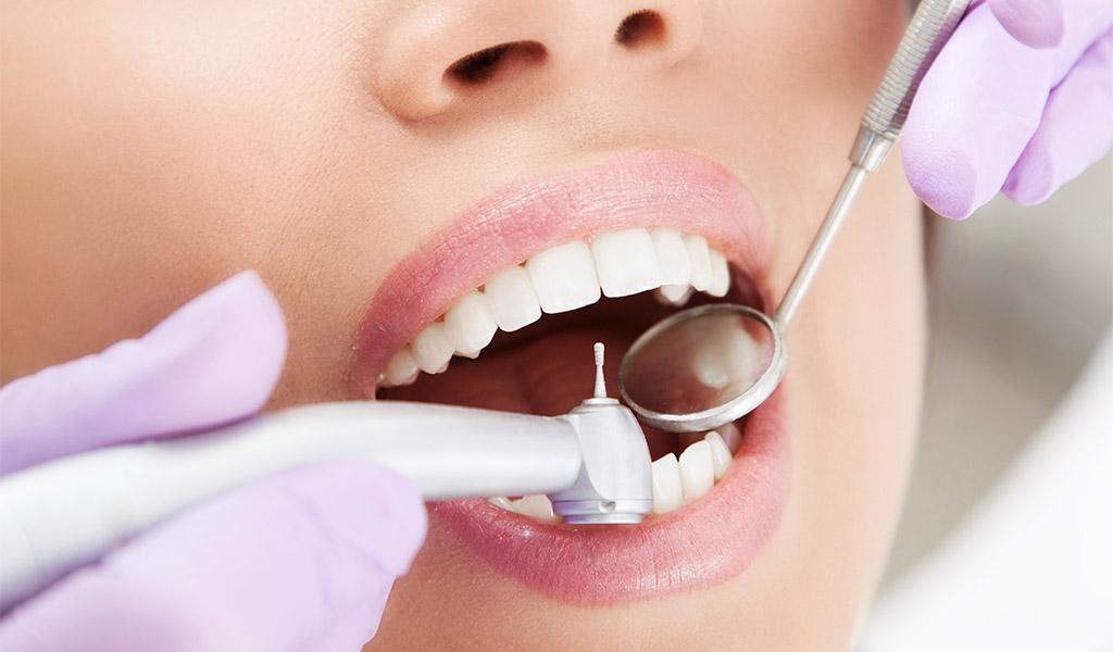 Higiene dental en Martorell