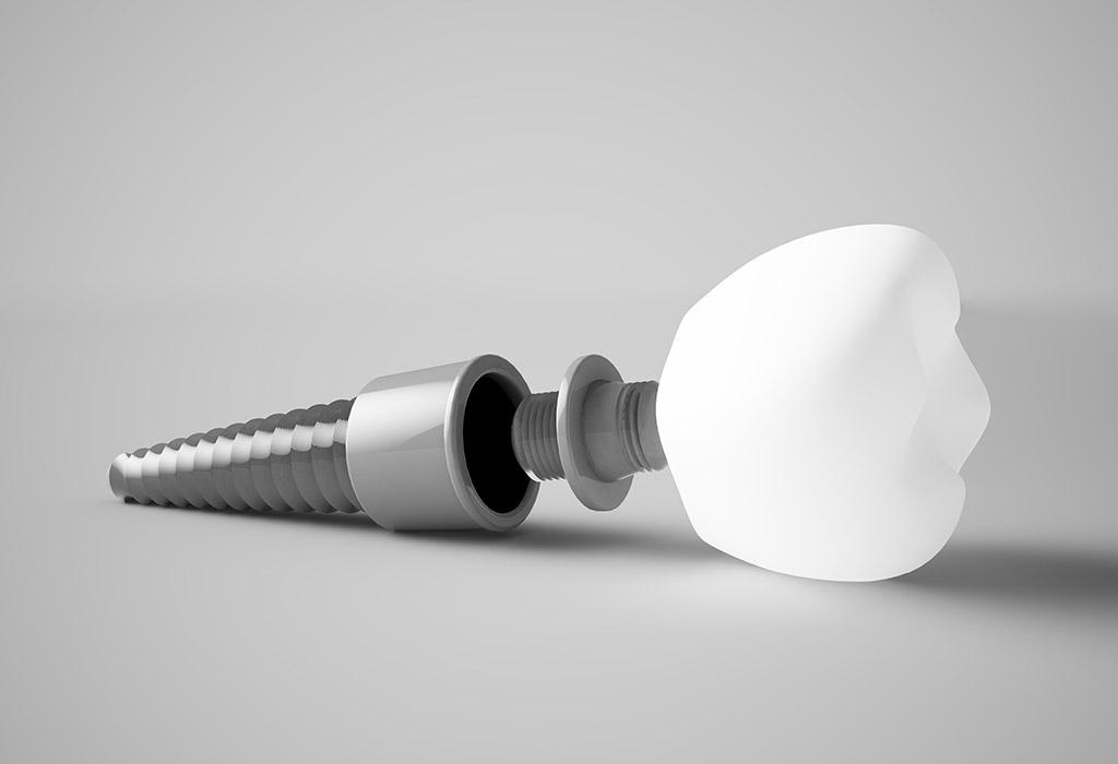 Implantes dentales de carga inmediata en Martorell