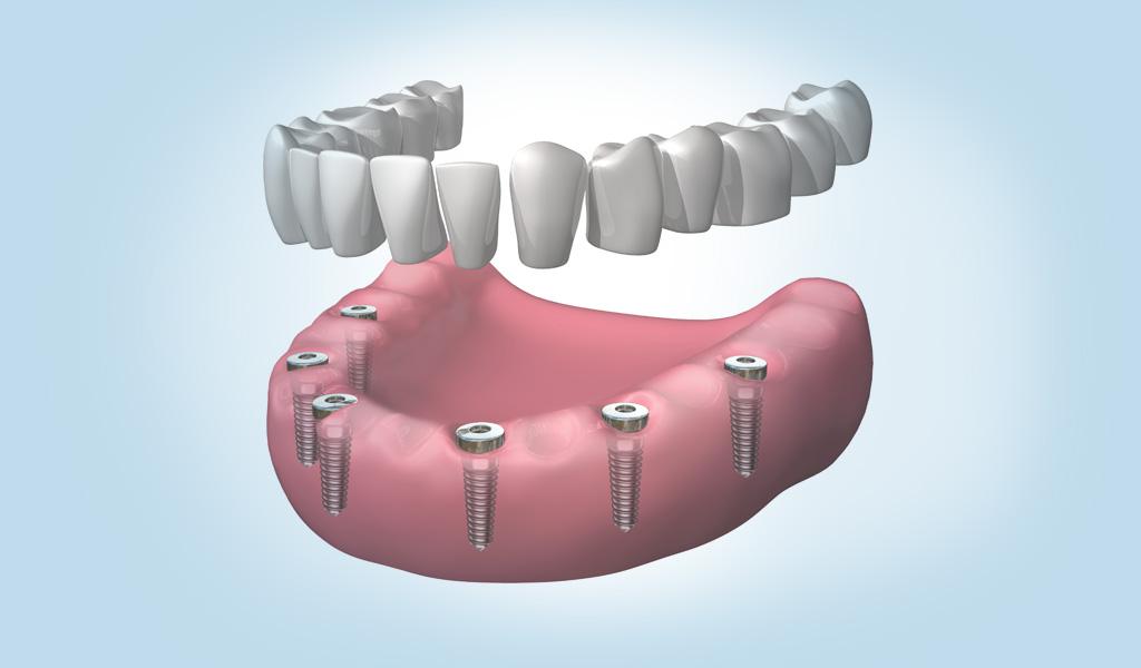 implantes dentales en Martorell