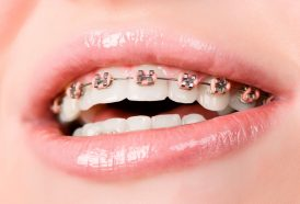 ortodoncia en Martorell