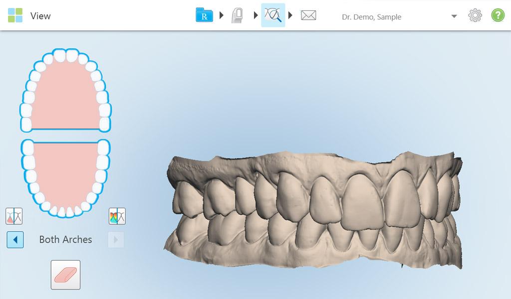 Ortodoncia Invisalign en Martorell
