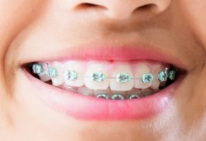 Ortodoncista en Martorell